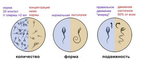 Характеристика спермограммы