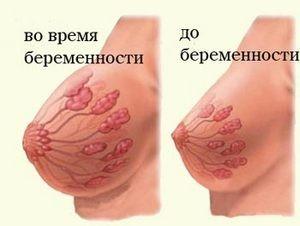 Нагрубание молочных желез признак беременности